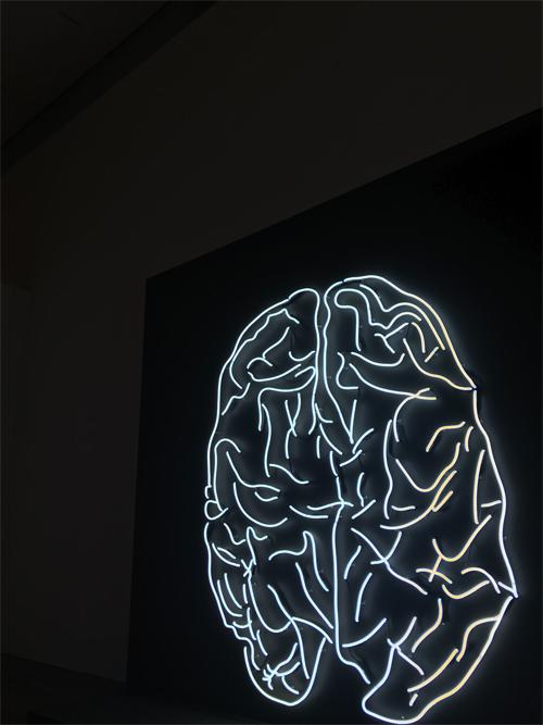 Evolution-Wellness-Wilmington-NC-Best-Therapist-Anxiety-in-The-Brain
